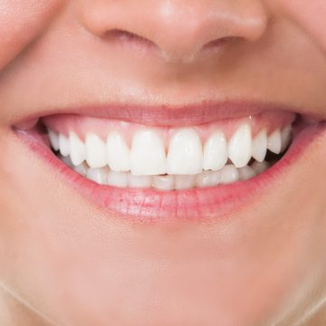 Tips to Maintain Healthy Teeth and Gums, Philadelphia